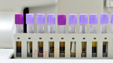 Photo of Hemogram (Tam Kan Sayımı) Nedir? Önemli Bilgiler